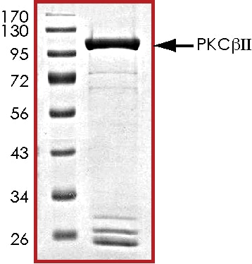 SDS-PAGE - Recombinant human PKC beta 2 protein (ab60841)