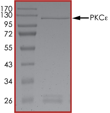 SDS-PAGE - Recombinant human PKC epsilon protein (ab60847)