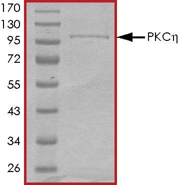 SDS-PAGE - Recombinant human PKC eta protein (ab60849)