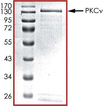 SDS-PAGE - Recombinant human PKC nu/PRKD3 protein (ab60874)