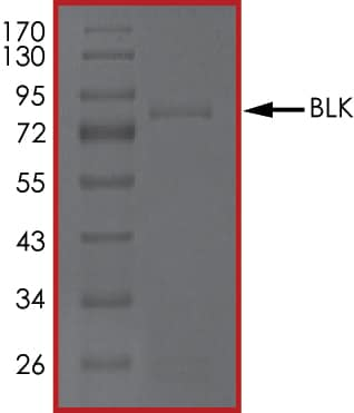 SDS-PAGE - Recombinant human BLK protein (ab60876)