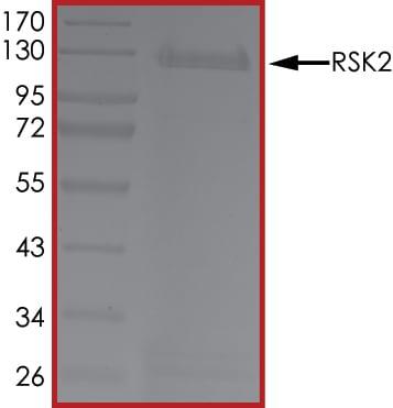 SDS-PAGE - Recombinant human Rsk 2 / MAPKAP Kinase 1b protein (ab60881)