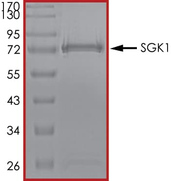 SDS-PAGE - Recombinant human SGK1 protein (ab60883)