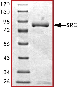 SDS-PAGE - Recombinant Src protein  (ab60884)