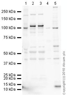 Western blot - Anti-Drebrin antibody [mAbcam60932] (ab60932)