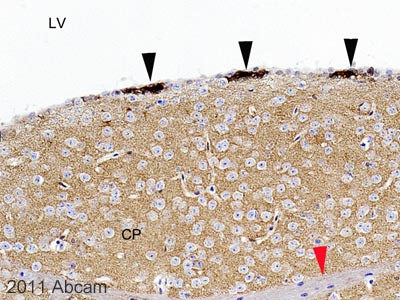 Immunohistochemistry (Formalin/PFA-fixed paraffin-embedded sections) - Anti-Drebrin antibody (ab60933)