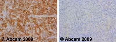 Immunohistochemistry (Formalin/PFA-fixed paraffin-embedded sections) - Anti-Insulin Receptor (phospho Y1361) antibody (ab60946)