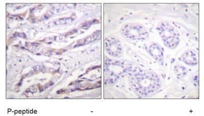 Immunohistochemistry (Formalin/PFA-fixed paraffin-embedded sections) - Anti-S6K1 (phospho T389 + T412) antibody (ab60948)