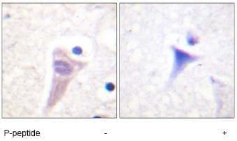 Immunohistochemistry (Formalin/PFA-fixed paraffin-embedded sections) - Anti-Calmodulin 1/2/3 (phospho T79 + S81) antibody (ab61001)