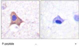 Immunohistochemistry (Formalin/PFA-fixed paraffin-embedded sections) - Anti-Transferrin Receptor (phospho S24) antibody (ab61021)