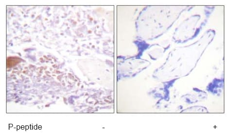 Immunohistochemistry (Formalin/PFA-fixed paraffin-embedded sections) - Anti-p57 Kip2 (phospho T310) antibody (ab61064)