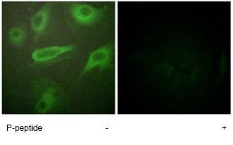 Immunocytochemistry/ Immunofluorescence - Anti-IL-4R (phospho Y497) antibody (ab61099)