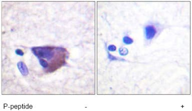 Immunohistochemistry (Formalin/PFA-fixed paraffin-embedded sections) - Anti-Kv2.1/KCNB1 (phospho S567) antibody (ab61107)