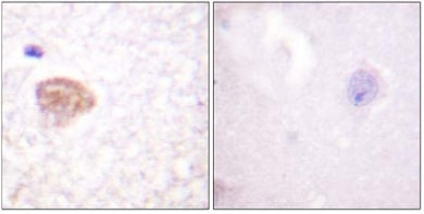 Immunohistochemistry (Formalin/PFA-fixed paraffin-embedded sections) - Anti-DDX3 antibody (ab61153)