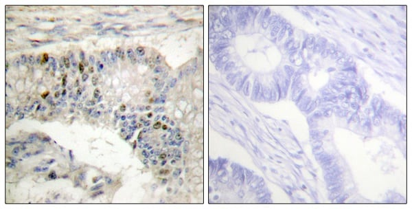 Immunohistochemistry (Formalin/PFA-fixed paraffin-embedded sections) - Anti-Histone H1 antibody (ab61177)