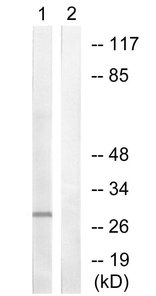 Western blot - Anti-Histone H1.3 + Histone H1.4 antibody (ab61177)