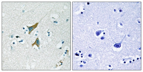 Immunohistochemistry paraffin embedded sections - Anti-MKP-1 antibody (ab61201)