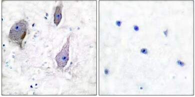 Immunohistochemistry (Formalin/PFA-fixed paraffin-embedded sections) - Anti-PMP22 antibody (ab61220)