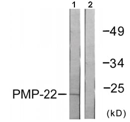 Western blot - Anti-PMP22 antibody (ab61220)
