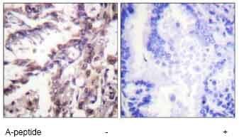 Immunohistochemistry (Formalin/PFA-fixed paraffin-embedded sections) - Anti-p53 (acetyl K381) antibody (ab61241)