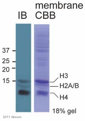 Western blot - Anti-acetyl Lysine antibody (ab61257)