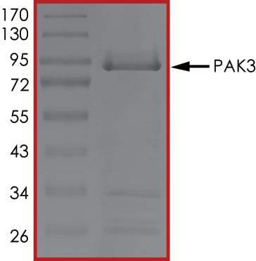 SDS-PAGE - Recombinant mouse PAK3 protein (ab61414)