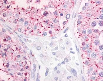Immunohistochemistry (Formalin/PFA-fixed paraffin-embedded sections) - Anti-OGR1 antibody (ab61420)