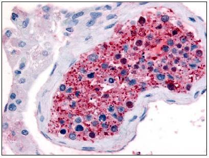 Immunohistochemistry (Formalin/PFA-fixed paraffin-embedded sections) - Anti-Frizzled 9 antibody (ab61430)