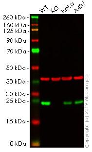 Western blot - Anti-MAD2 antibody (ab61591)