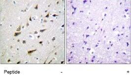 Immunohistochemistry (Formalin/PFA-fixed paraffin-embedded sections) - Anti-DREAM antibody (ab61770)