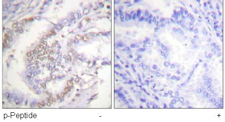 Immunohistochemistry (Formalin/PFA-fixed paraffin-embedded sections) - Anti-Ku70 (phospho S5) antibody (ab61783)