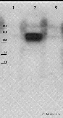 Western blot - Anti-Eph receptor B1 + Eph receptor B2 (phospho Y594 + Y604) antibody (ab61791)
