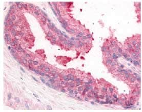 Immunohistochemistry (Formalin/PFA-fixed paraffin-embedded sections) - Anti-PDE8A antibody (ab61815)