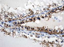 Immunohistochemistry (Formalin/PFA-fixed paraffin-embedded sections) - Anti-DPP4 antibody (ab61825)