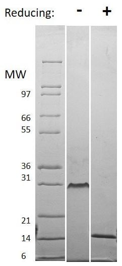 SDS-PAGE - Recombinant human VEGF 121B protein (ab61872)
