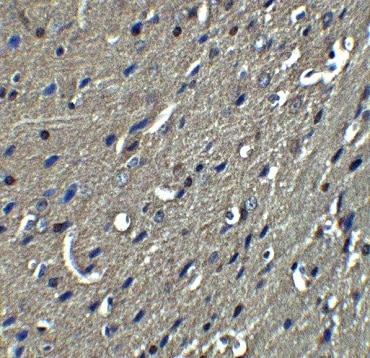 Immunohistochemistry (Formalin/PFA-fixed paraffin-embedded sections) - Anti-Nogo A antibody (ab62024)