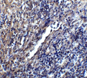 Immunohistochemistry (Formalin/PFA-fixed paraffin-embedded sections) - Anti-Stromal interaction molecule 1 antibody (ab62031)