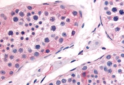 Immunohistochemistry (Formalin/PFA-fixed paraffin-embedded sections) - Anti-Prostaglandin E Synthase/MPGES-1 antibody (ab62050)