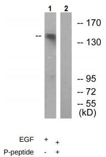 Western blot - Anti-c-Kit (phospho Y703) antibody (ab62154)