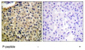 Immunohistochemistry (Formalin/PFA-fixed paraffin-embedded sections) - Anti-c-Kit (phospho Y703) antibody (ab62154)