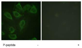 Immunocytochemistry/ Immunofluorescence - Anti-CD31 (phospho Y713) antibody (ab62169)