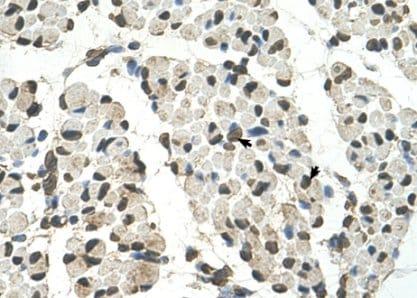 Immunohistochemistry (Formalin/PFA-fixed paraffin-embedded sections) - Anti-PSD3 antibody (ab62194)
