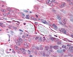 Immunohistochemistry (Formalin/PFA-fixed paraffin-embedded sections) - Anti-PLA2G3 antibody (ab62197)