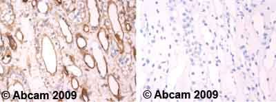Immunohistochemistry (Formalin/PFA-fixed paraffin-embedded sections) - Anti-Calcium Sensing Receptor (phospho T888) antibody (ab62214)