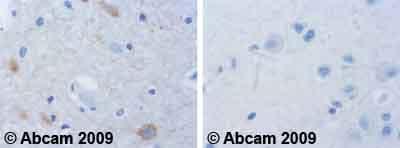 Immunohistochemistry (Formalin/PFA-fixed paraffin-embedded sections) - Anti-CaMKI (phospho T177) antibody (ab62215)