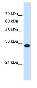 Western blot - Anti-SLC25A38 antibody (ab62224)