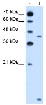 Western blot - Anti-SLC46A3 antibody (ab62301)