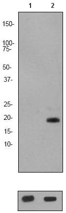 Western blot - Anti-Stathmin 1 (phospho S24) antibody [EP2124Y] (ab62336)