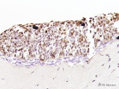 Immunohistochemistry (Formalin/PFA-fixed paraffin-embedded sections) - Anti-RFP antibody (ab62341)