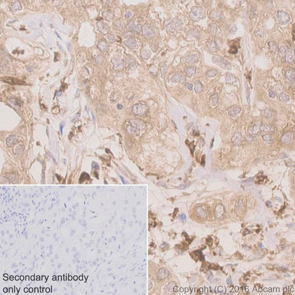 Immunohistochemistry (Formalin/PFA-fixed paraffin-embedded sections) - Anti-Nrf2 antibody [EP1808Y] - ChIP Grade (ab62352)